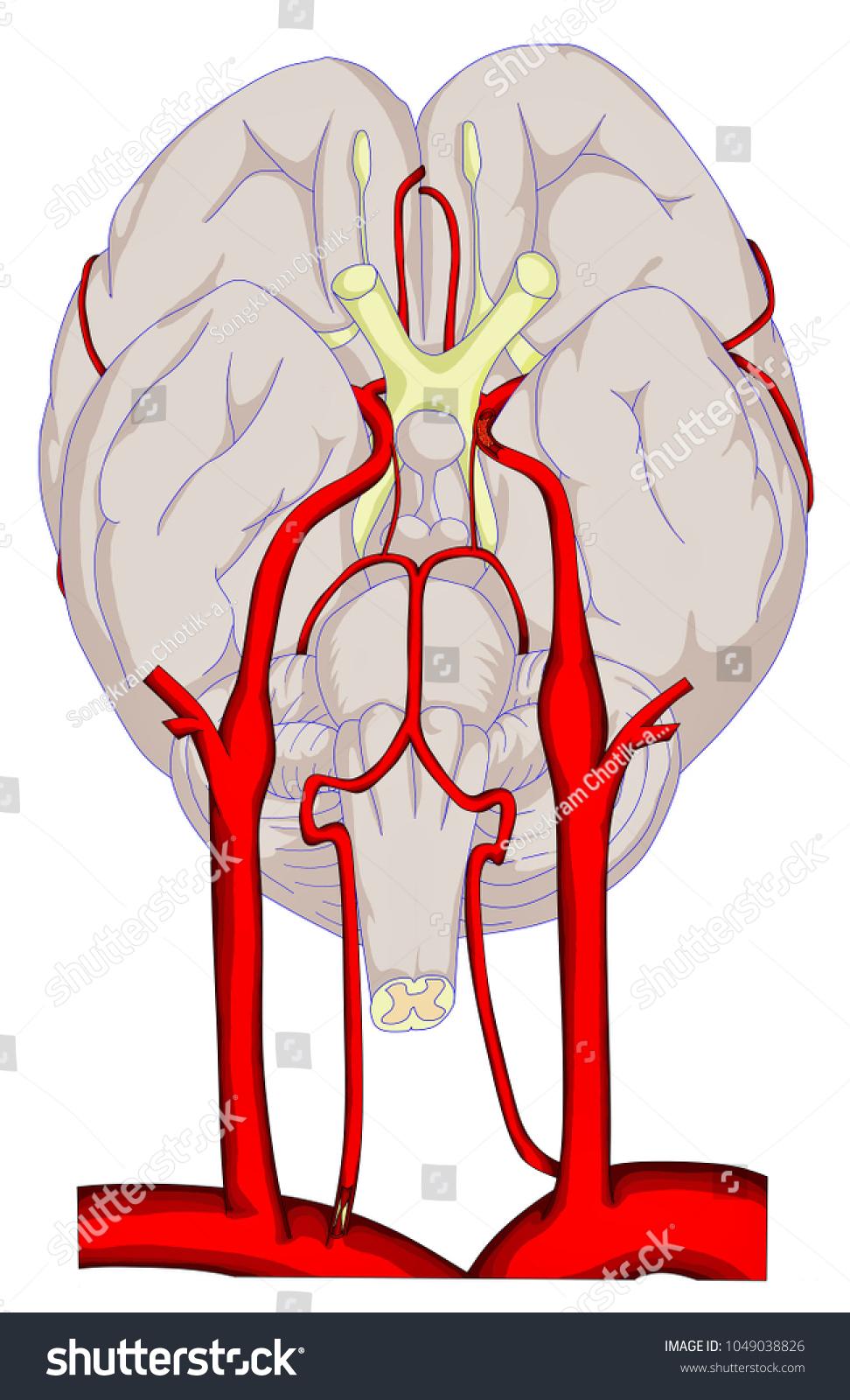 Intracranial Left Internal Carotid Occlusion Severe Stock