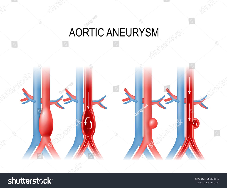 Schön Zweige Der Aorta Galerie - Menschliche Anatomie Bilder ...