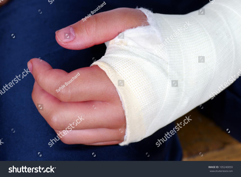 Рука ребенка в гипсе фото