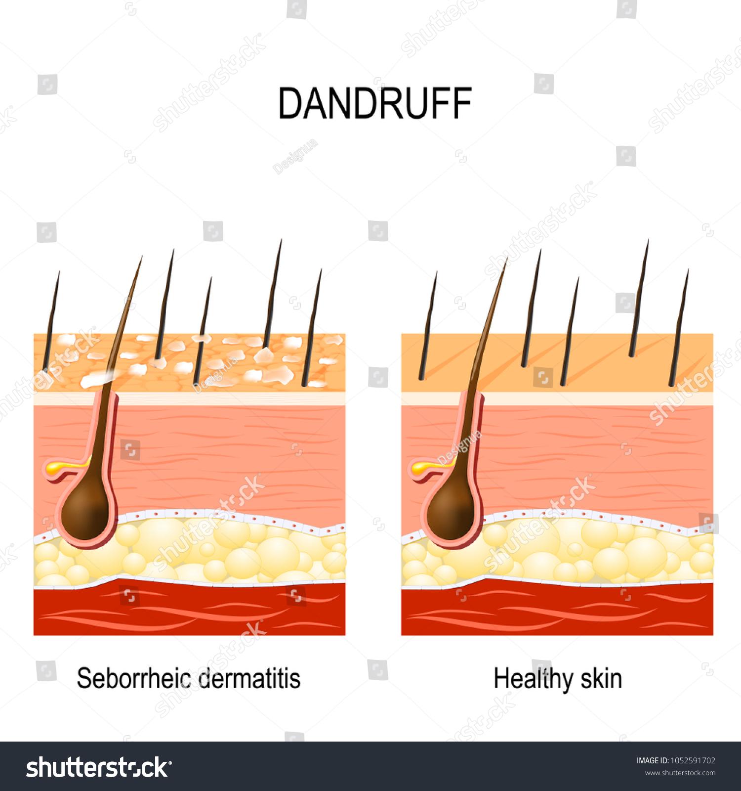 dandruff seborrheic dermatitis can occur due stock vector (royalty free)  1052591702  shutterstock