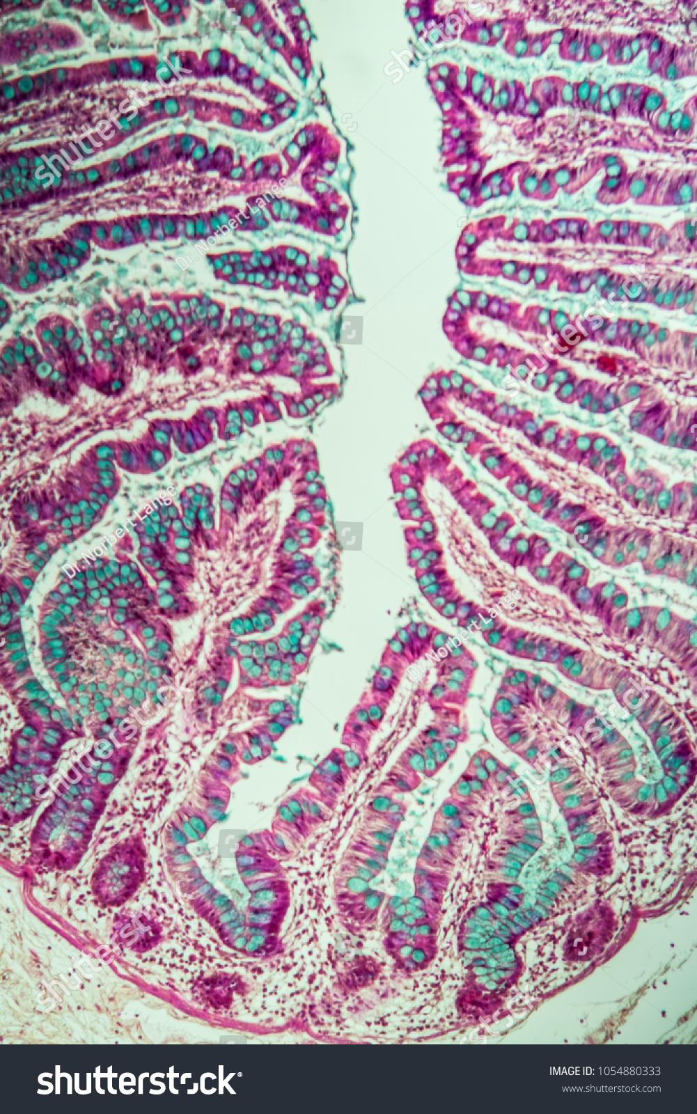 Small Intestine Intestinal Villi Under Microscope Stock Photo Edit