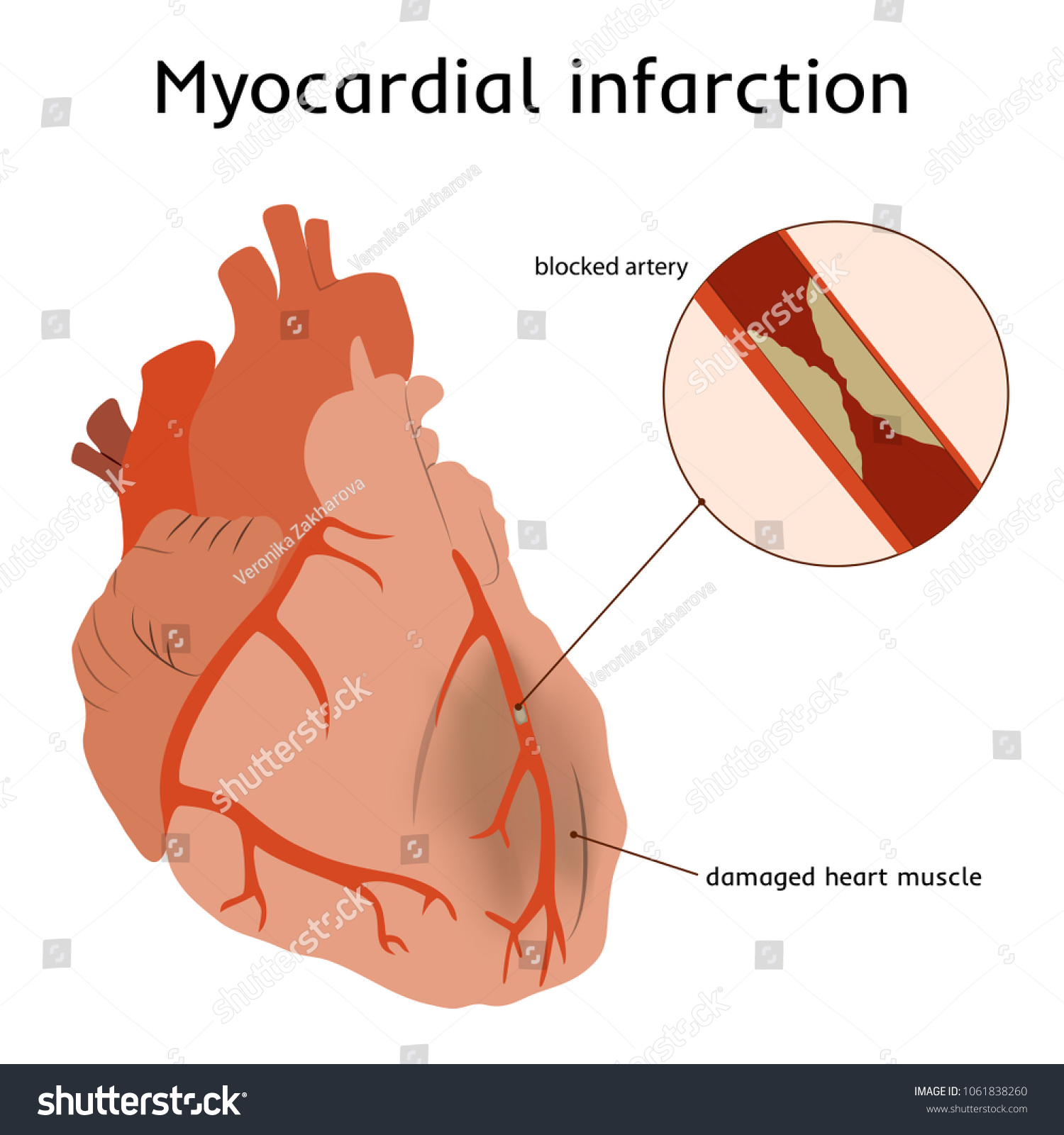 Myocardial Infarction Heart Attack Blocked Artery Stock Vector ...