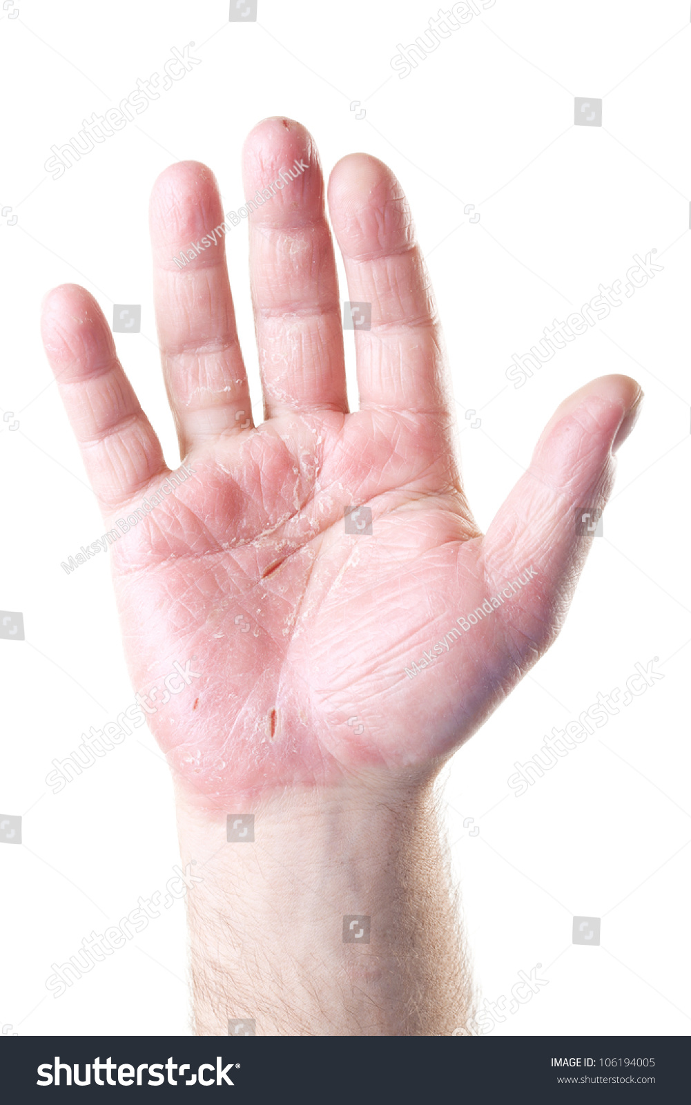 Шелушение кожи члена 22 фотография