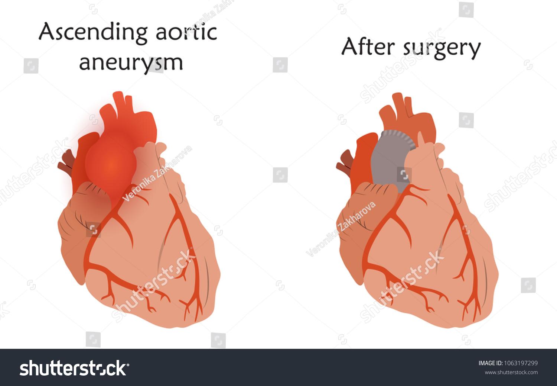 Ascending Aortic Aneurysm Before After Repair Stock Vector (Royalty ...