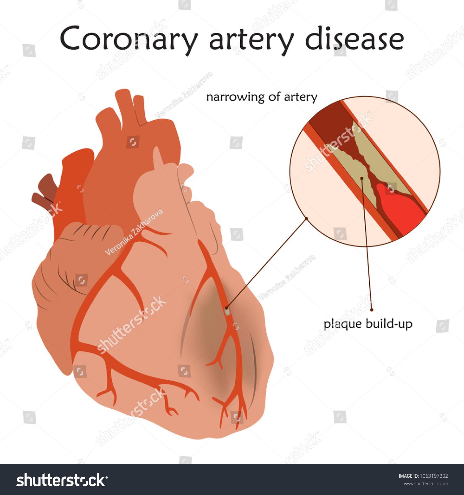 Coronary Artery Disease Blocked Artery Damaged Stock Vector ...