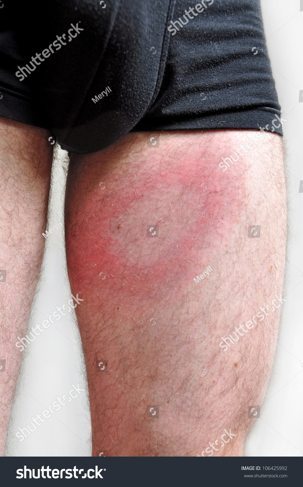 Lyme Disease, People Health, Man Infected. Stock Photo 106425992 : Shutterstock