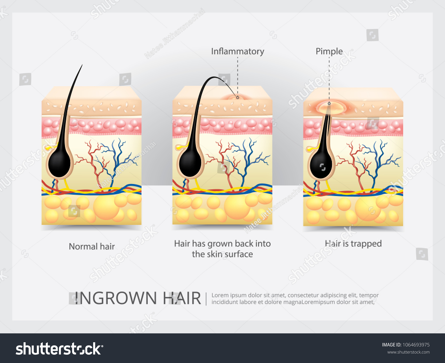 Ingrown Hair Structure Vector Illustration Stock Vector Royalty