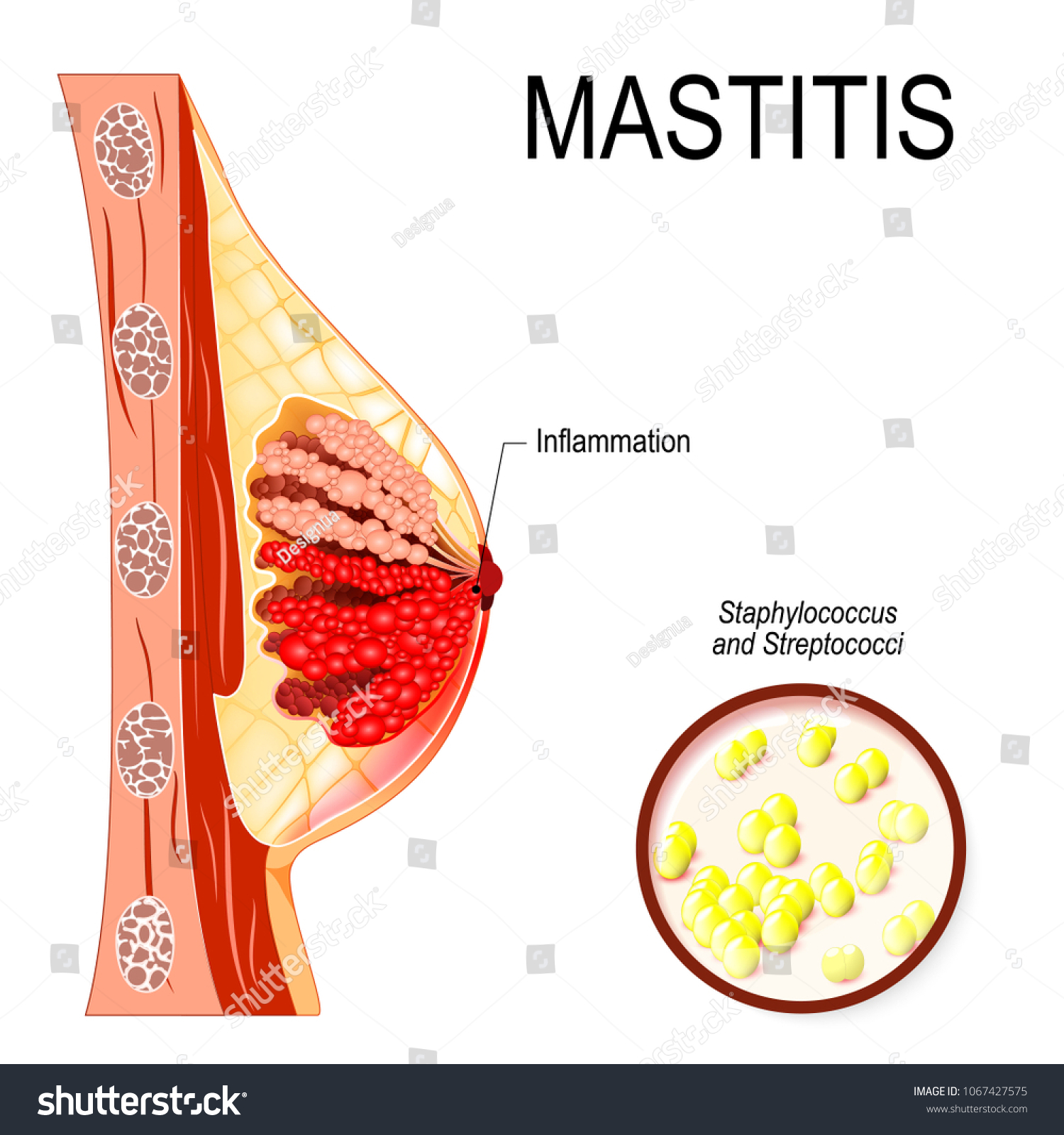 Mastitis Inflammation Breast Abscess Formation Human Stock Vector