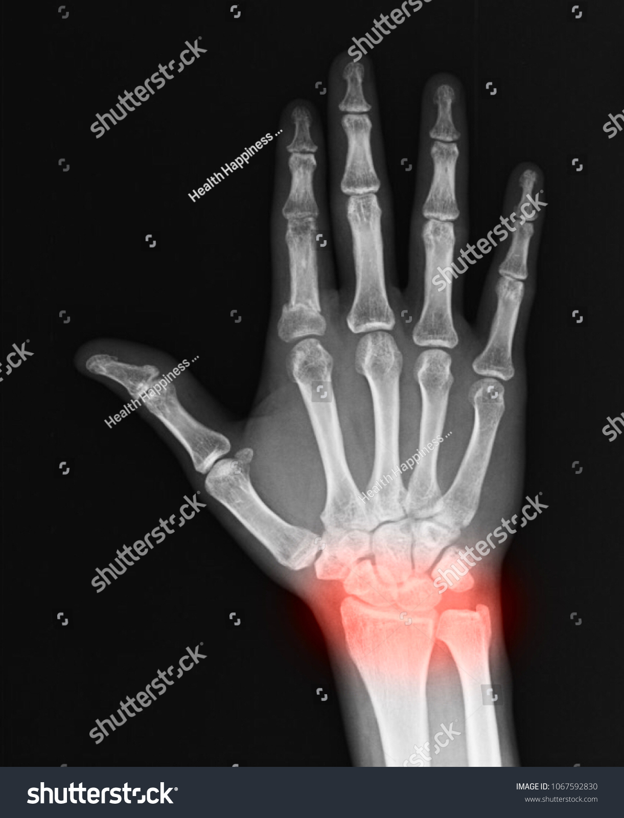 Human Hand Wrist Pain Caused By Stock Photo (Royalty Free ...