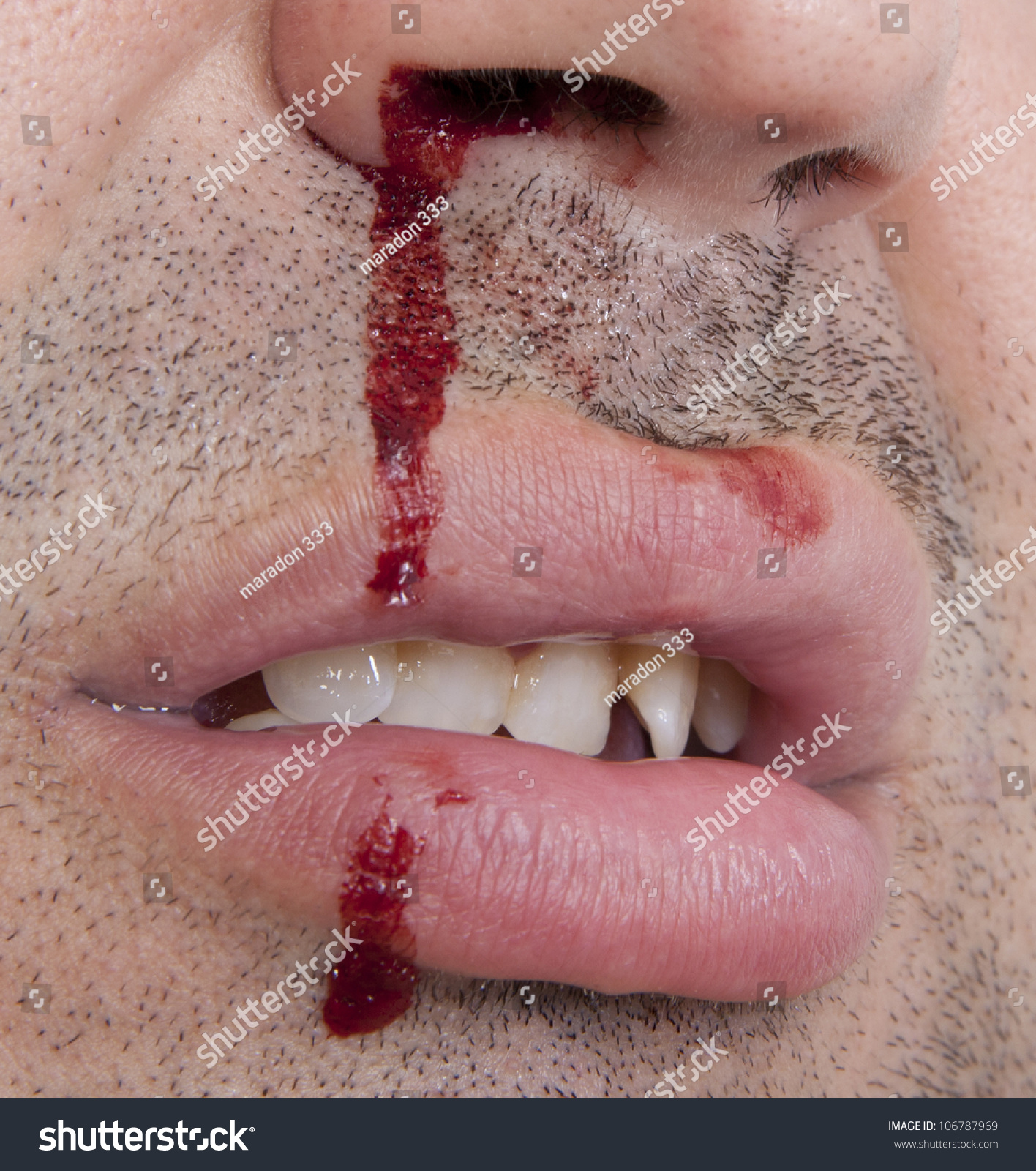 Hurt Nose Bleeding Stock Photo Dried Up Nose Bleed Blood