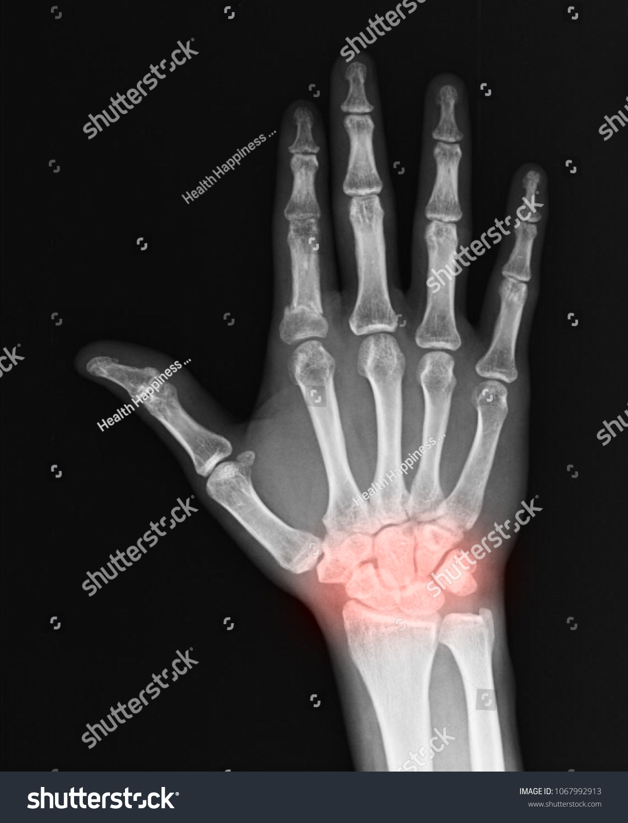 Human Hand Wrist Pain Caused By Stock Photo (Edit Now) 1067992913 ...