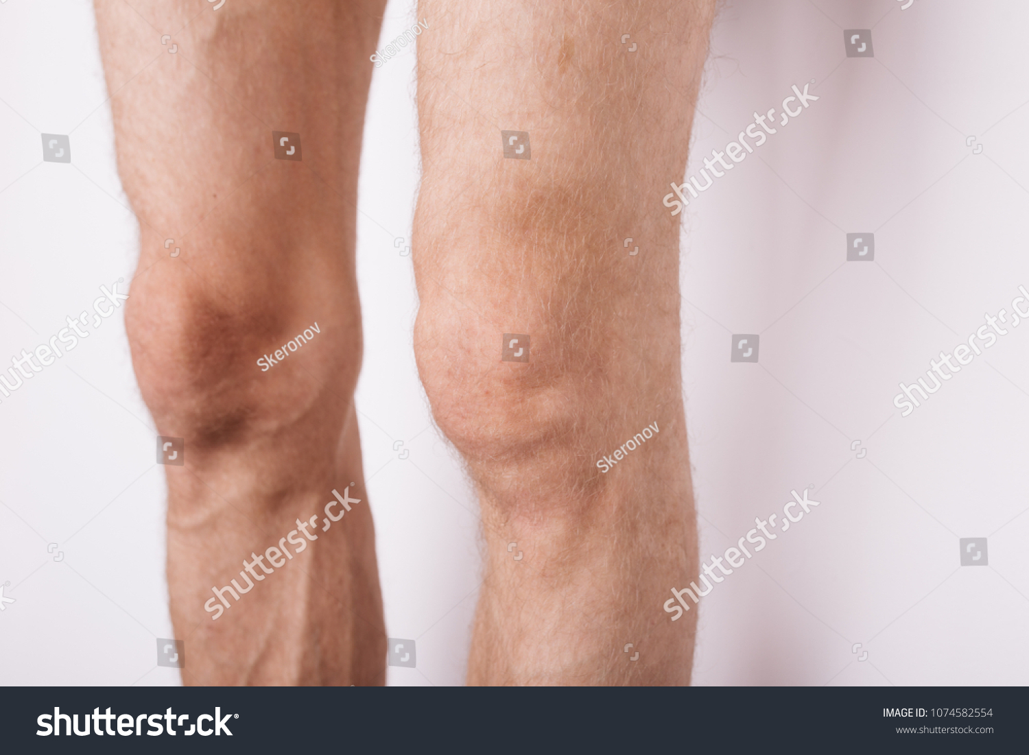 Male Hairy Feet Body Parts Knees Stock Photo Edit Now 1074582554