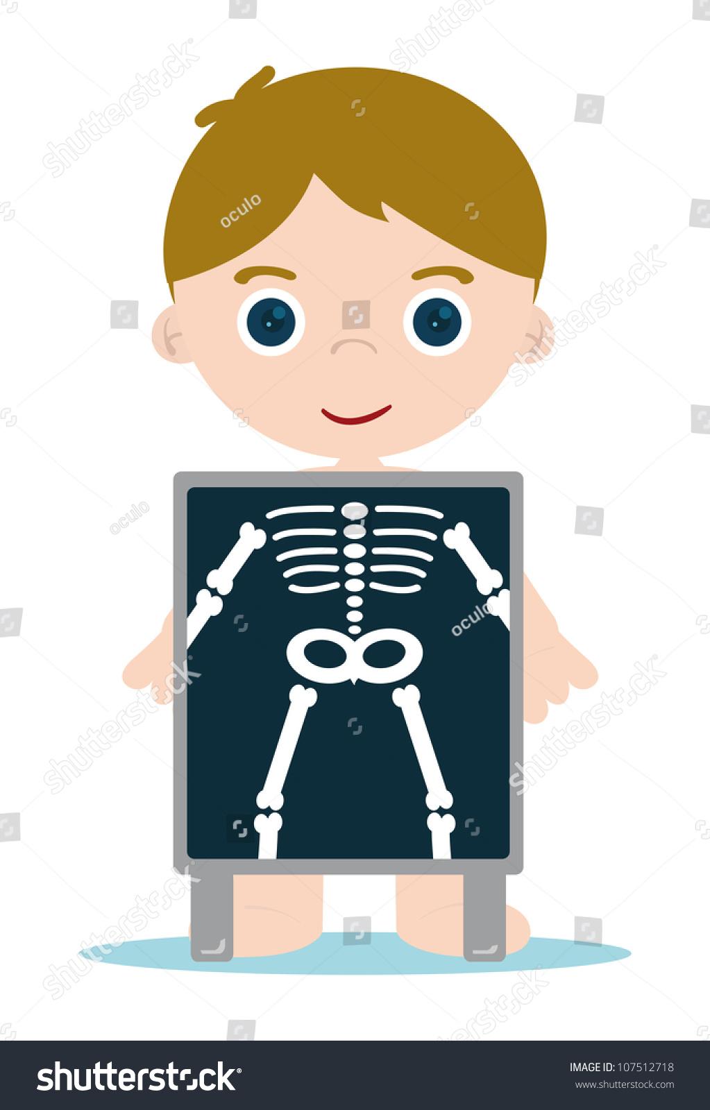x ray check bones kid stock vector 107512718 shutterstock sick man clipart sick person clip art images