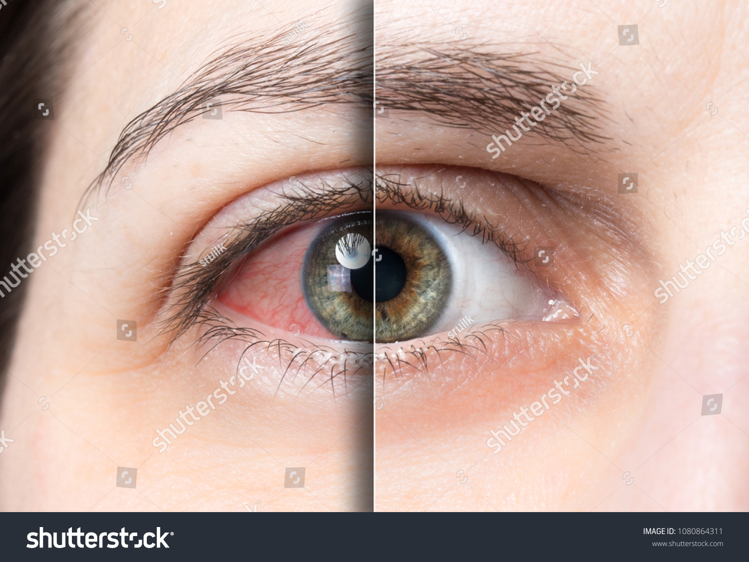 Red eye before and after treatment