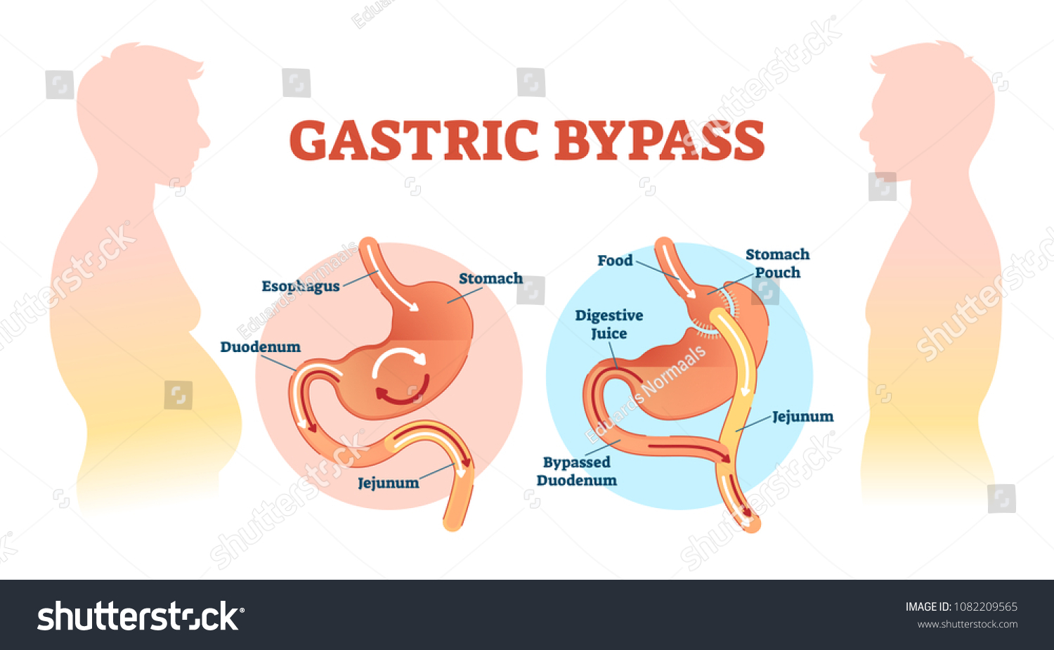 Gastric Bypass Medical Surgery Procedure Vector Stock Vektorgrafik