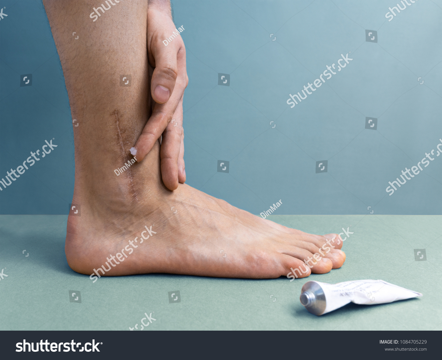 Man Rubbing Cream Scar Broken Ointment Stock Photo Edit Now