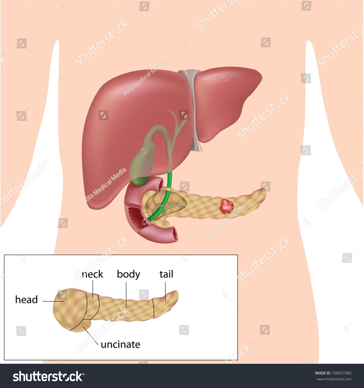 Pancreatic Cancer Diagram Parts Pancreas Stock Illustration ...
