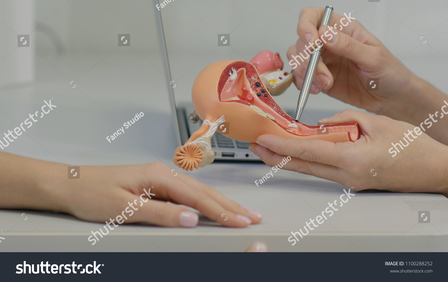Gynecologist Doctor Consulting Patient Using Uterus Stockfoto Jetzt