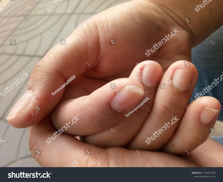 Picking Skin Around Nails Fingers Skin Stock Photo (Safe to Use ...