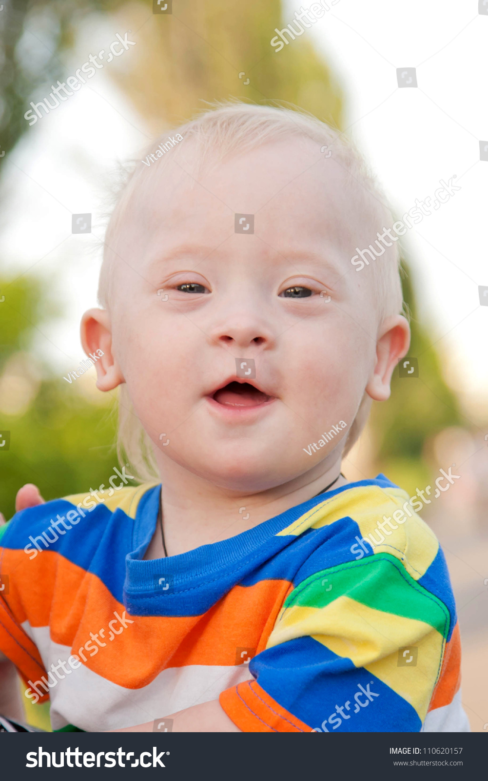 wonderful smiling baby boy with down syndrome stock photo