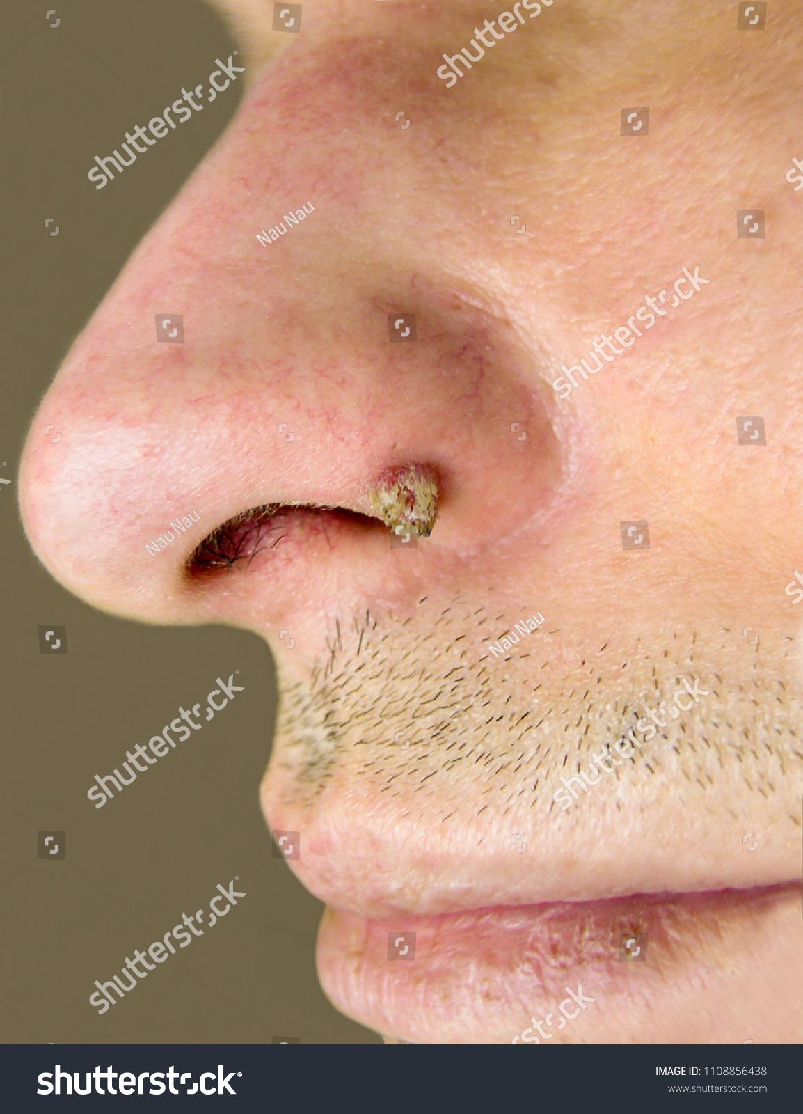 Méhnyak rákszűrés - Dr. Szabó György Róbert Hyperkeratosis és papilloma