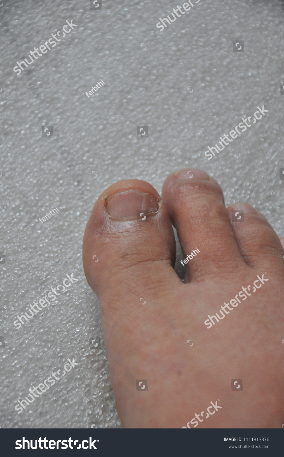 Toe Foot Swelling Caused By Enlarged Stock Photo Edit Now