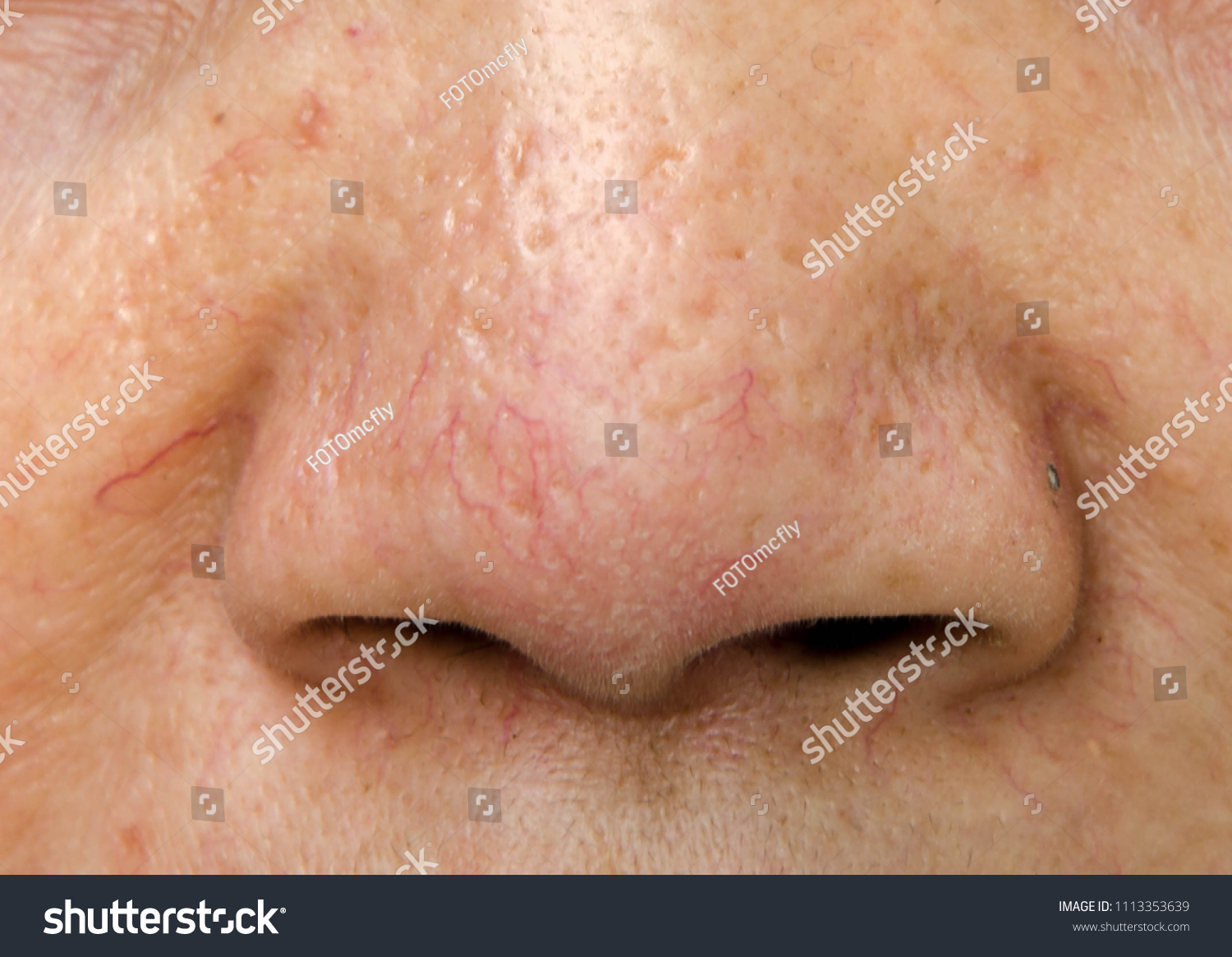 Capillaries On Women Nose Acne Scars People Stock Image 1113353639
