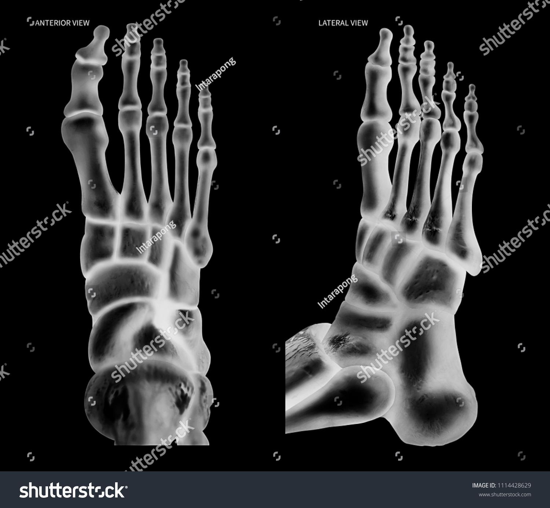 Xray Human Foot Bone Anterior View Stock Illustration 1114428629 ...