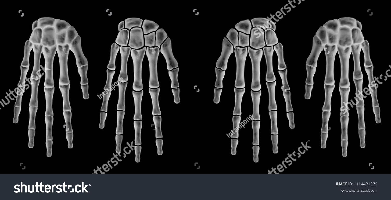 Xray Human Hand Bone Separate Hand Stock Illustration 1114481375 ...