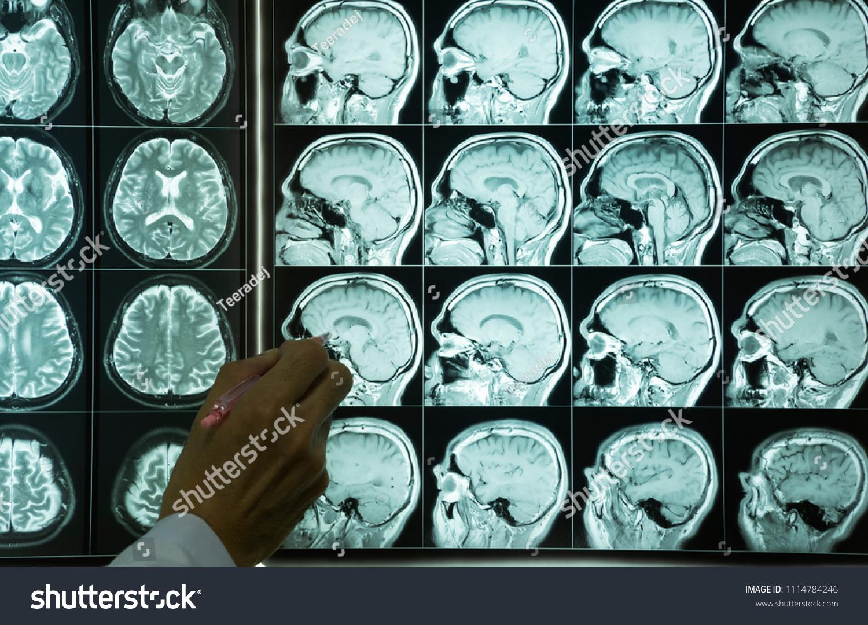 Doctor Hand Pointing MRI Film Brain Stock Photo (Royalty Free ...