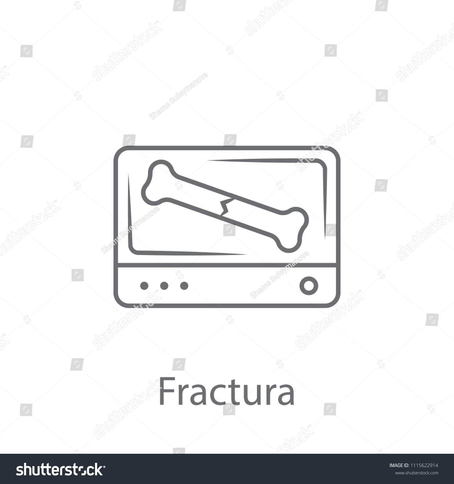 Fracture Icon Simple Element Illustration Fracture Stock Vector