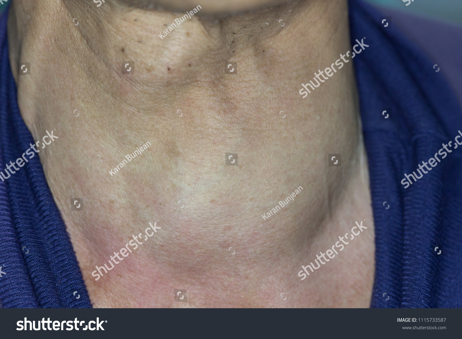 Zooming Closeup View Enlarged Thyroid Gland People Stock Image