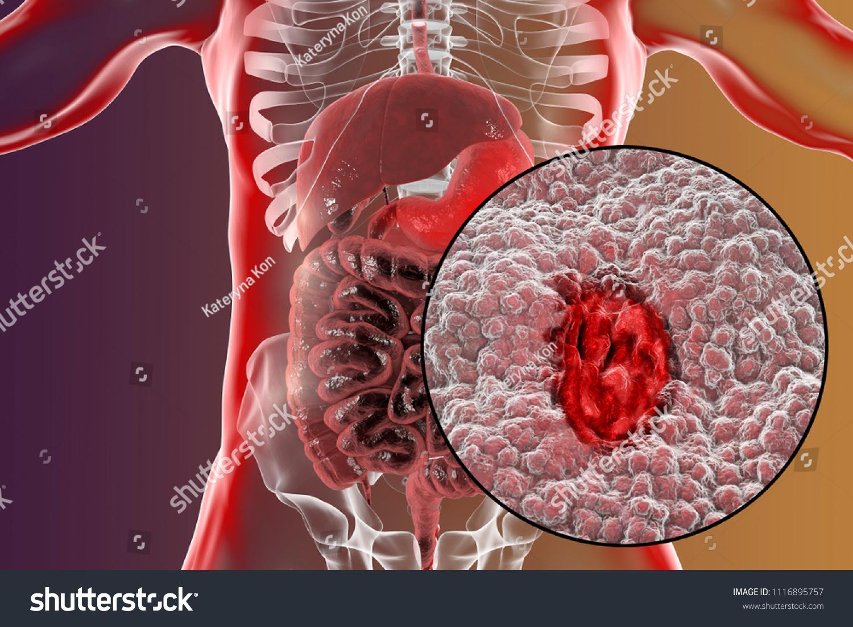 Gastric Ulcer Mucosa Stomach Ulcer Anatomy Stockillustration