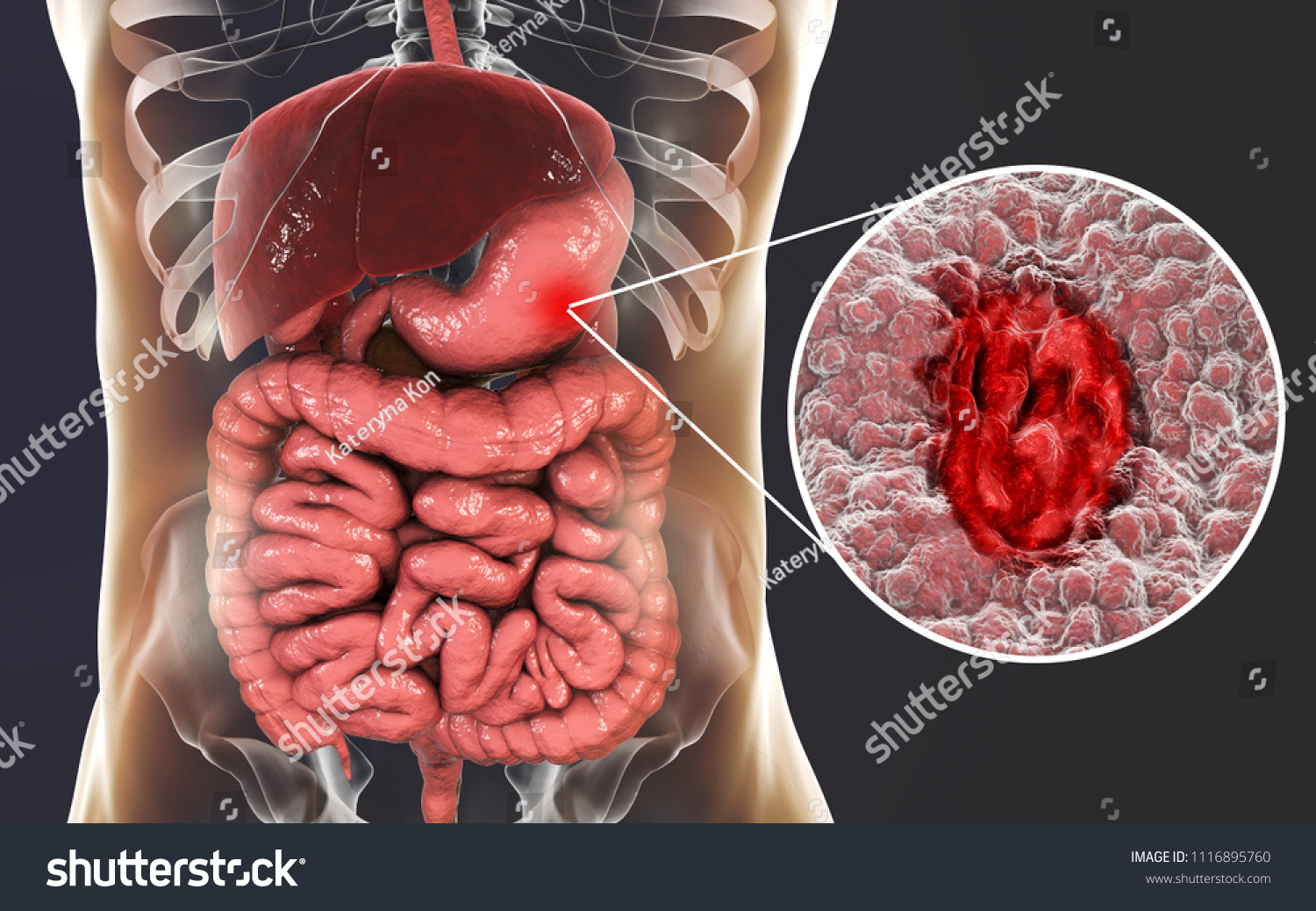 Gastric Ulcer Mucosa Stomach Ulcer Anatomy Stock Illustration