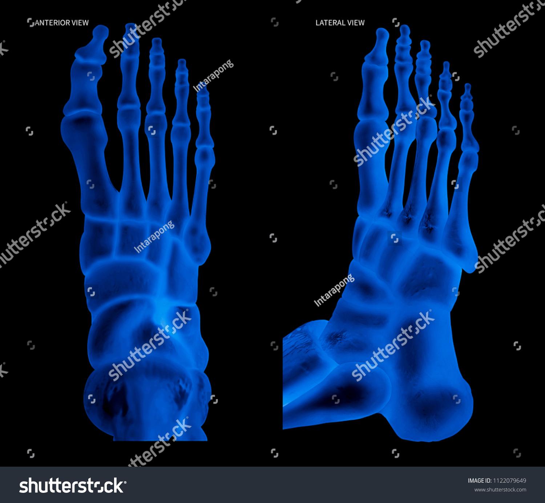 Xray Human Foot Bone Anterior View Stock Illustration 1122079649 ...