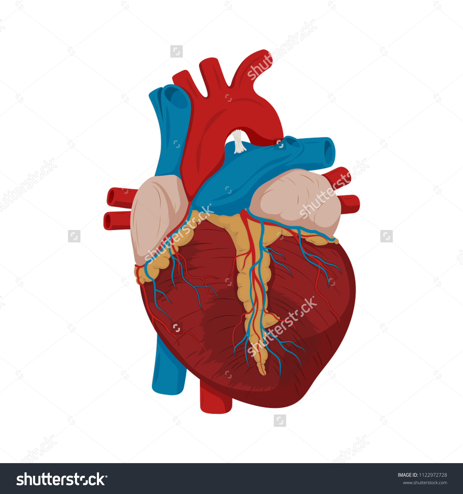 Ascending Aortic Aneurysm Damaged Heart Muscle Stock Photo (Photo ...