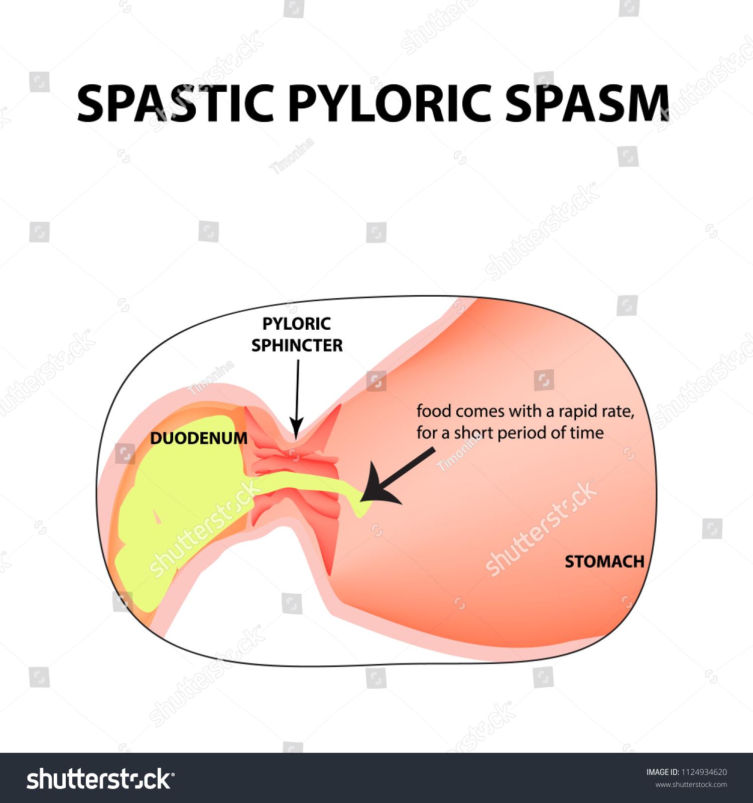 Spasms Pylorus Pylorospasm Spastic Pyloric Sphincter Stock