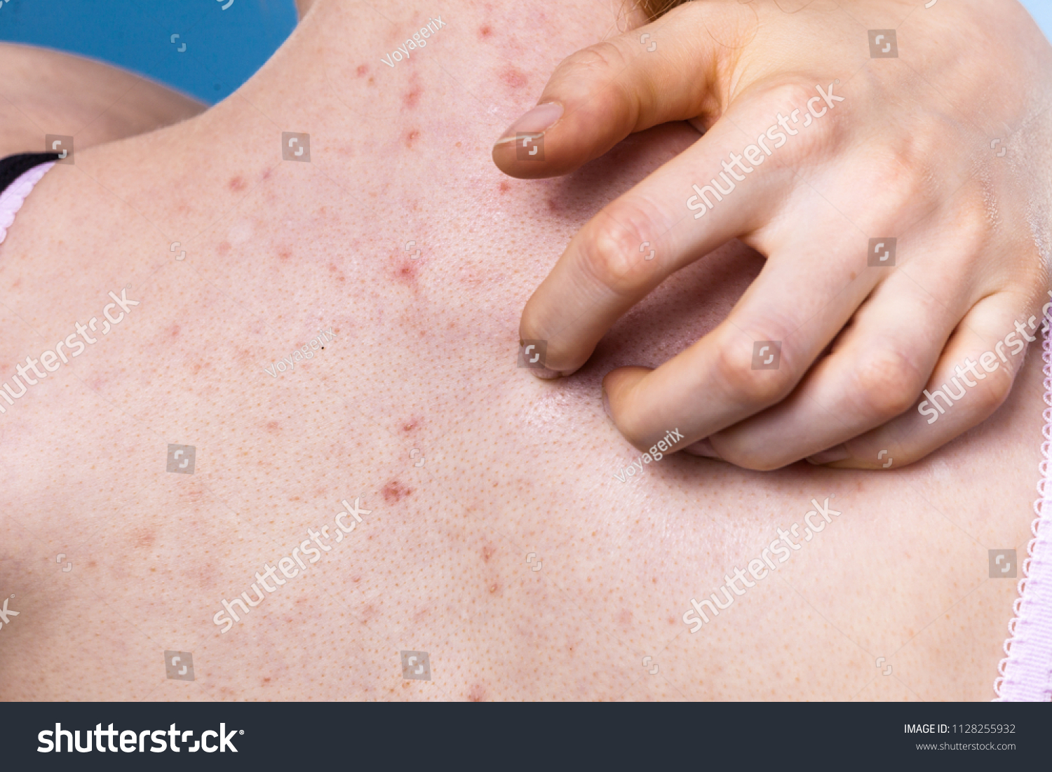Health Problem Skin Diseases Young Woman Stock Photo (Edit