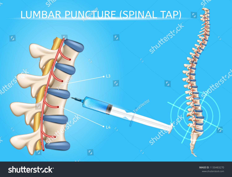 Lumbar Puncture Spinal Tap Procedure Medical Stock Vector (Royalty ...
