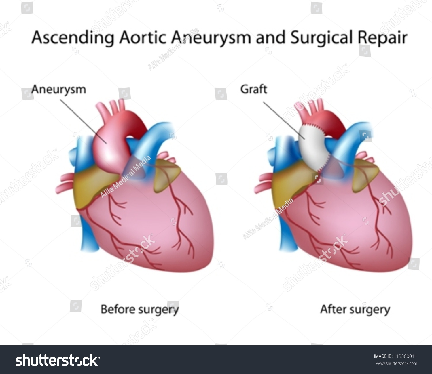 Ascending Aortic Aneurysm Open Surgery Stock Vector (Royalty Free ...