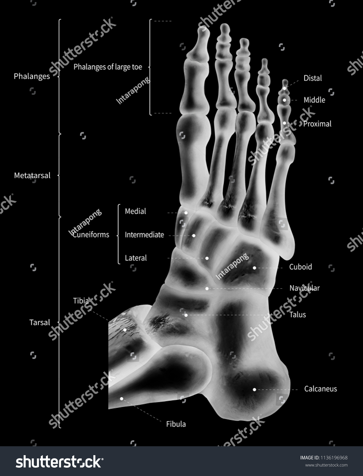 Infographic Diagram Human Foot Bone Anatomy Stock Illustration ...