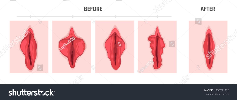 Types of labia