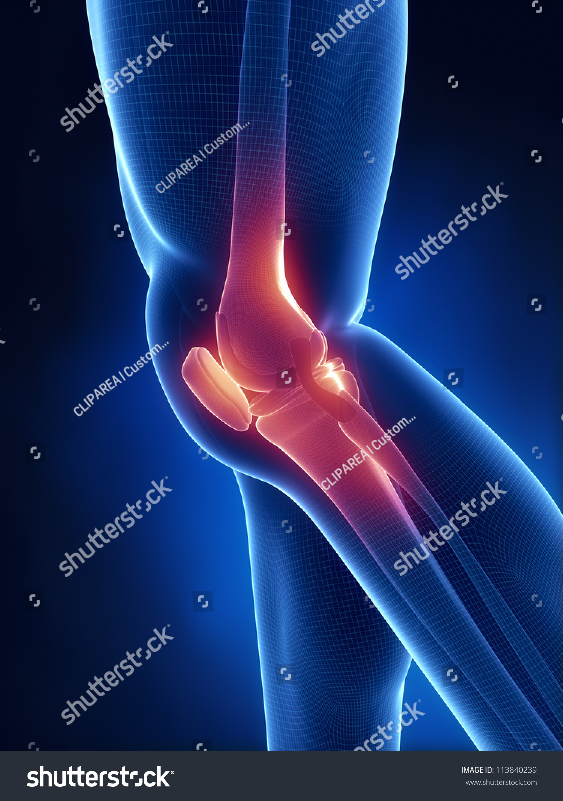 Knee Xray Blue Anatomy Stock Illustration 113840239 - Shutterstock