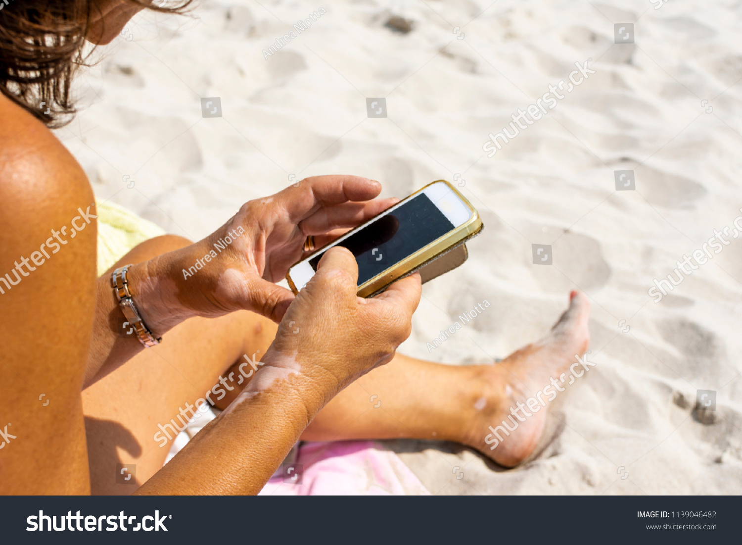 Woman with vitiligo on her hands is using a phone and gets suntanned on the beach  #1139046482