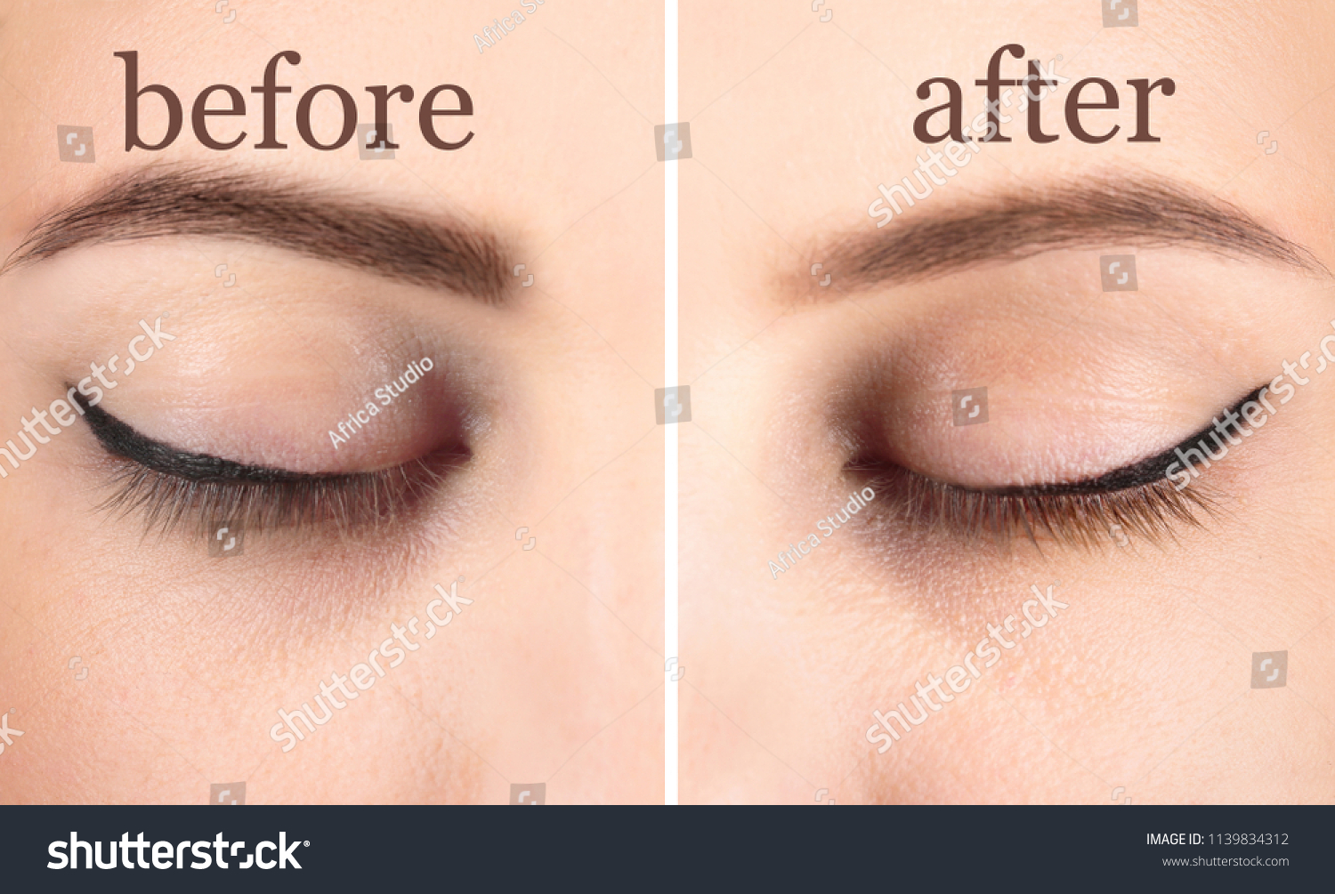 Woman Before After Laser Tattoo Removal Stock Photo Edit Now
