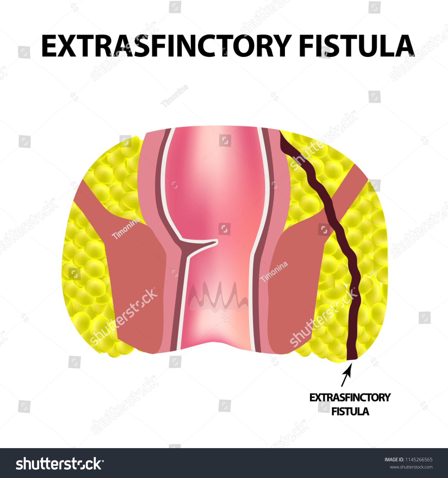 Royalty Free Stock Illustration Of Types Fistulas Rectum