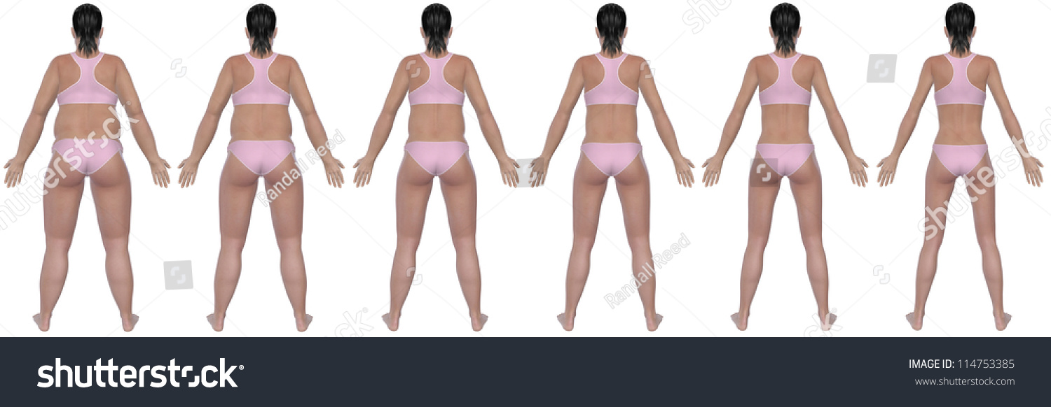 Rear View Illustration Obese Womans Weight Stock Illustration 114753385