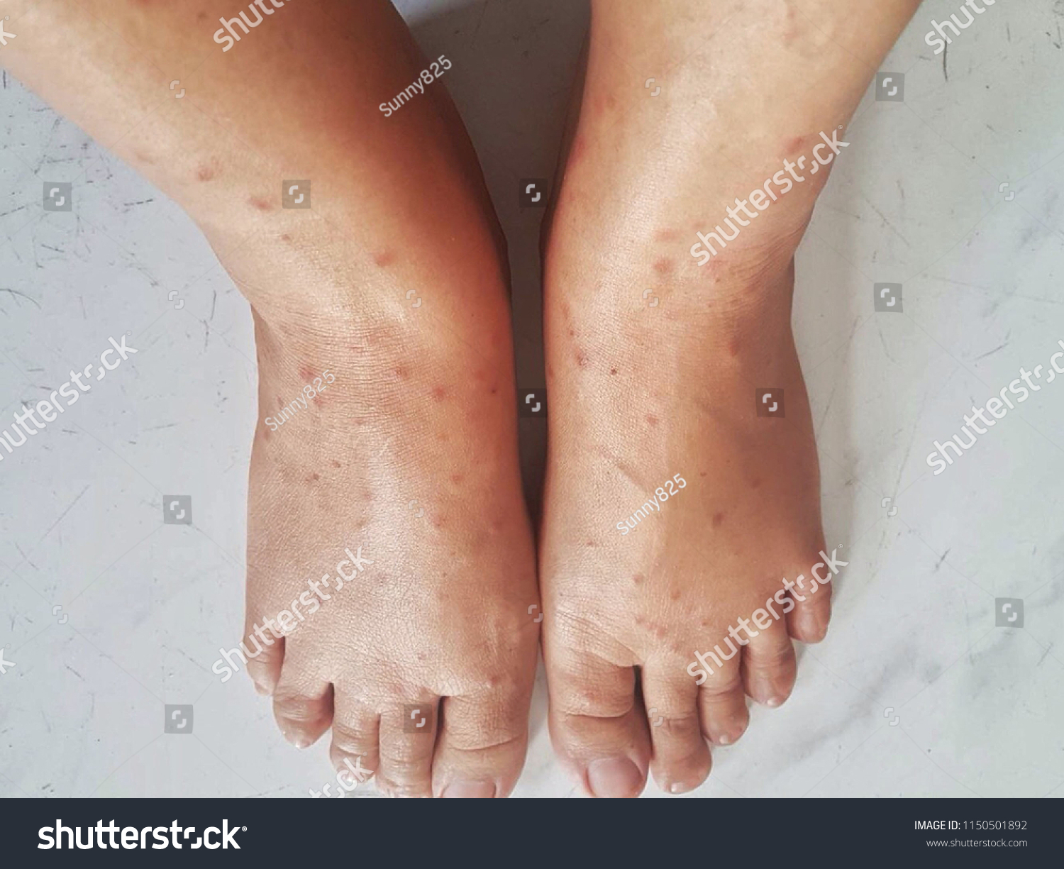 Allergic Reactionsblisters Rash Itching Due Cat Stock Photo (Edit