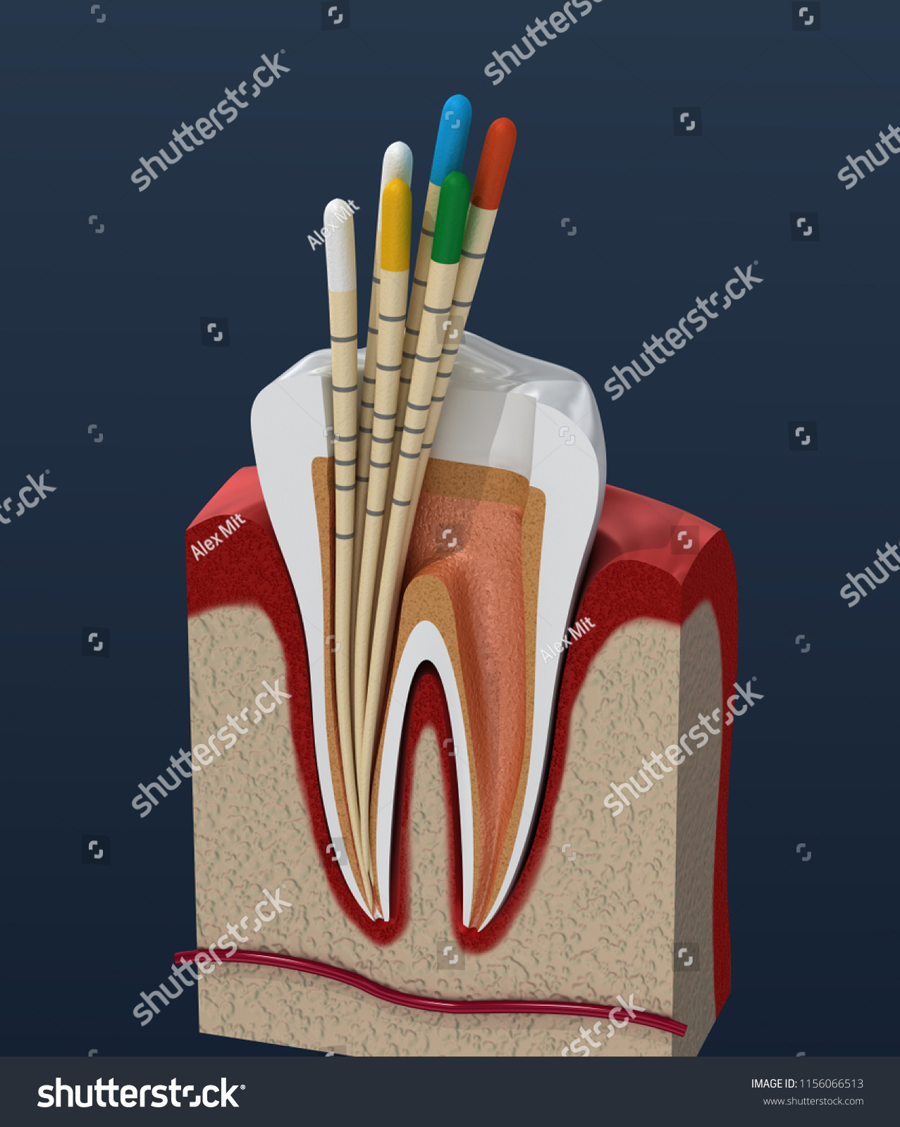 Gutta Percha Endodontics Instrument Dental Anatomy Stock ...