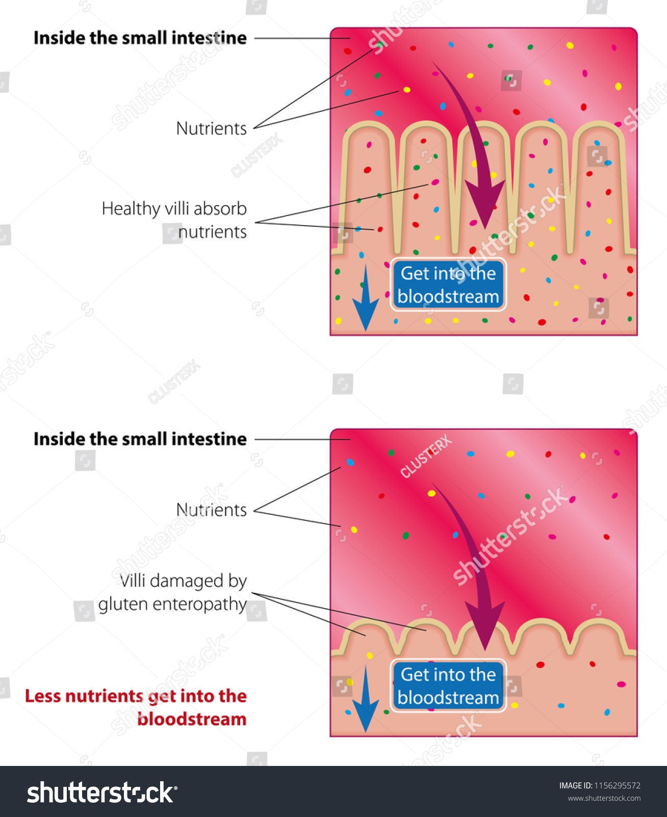Absorption Nutrients Small Intestine Healthy Damaged Stock Vector